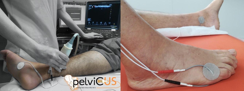 Estimulación del nervio tibial posterior