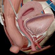 Incontinencia urinaria mujer